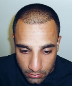 Ravi Bopara before